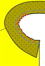 カーブの引きつりの対処法